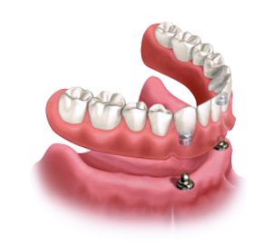 Diagram of snap-on dentures which are secured by dental implants, for information on stabilizing your dentures from the office of Lowell, MA dentist Dr. Michael Szarek.