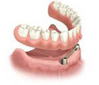 Diagram of a dental implant bar placed in the bone with a denture hovering over it and ready to be secured to the implants.