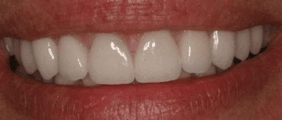 After cosmetic dentistry close-up photo of a patient's smile after receiving dental crowns to close a gap and even and brighten her teeth.