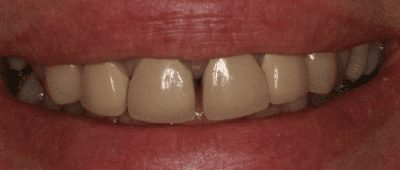 Before cosmetic dentristry close-up photo of lips and worn and discolored teeth that have a gap between the front center teeth.