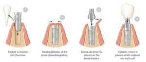 Diagram of dental implant phases, including 1) implant insertion in bone, 2) healing process, 3) abutment attachment, 4) crown attachment.