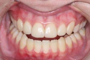 Dental bonding after photo of a smile that was restored by Lowell, MA accredited cosmetic dentist Dr. Szarek.