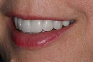 Porcelain veneers after photo of a woman's smile that was restored by Lowell, MA accredited cosmetic dentist Dr. Szarek.
