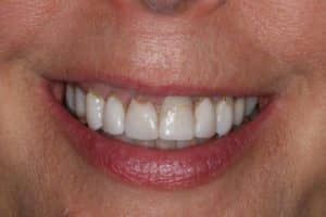 Porcelain veneers before photo of a woman's smile is discolored and brown, but was restored by Lowell, MA accredited cosmetic dentist Dr. Szarek.