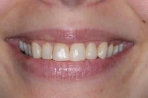 Close-up smile photo before a patient received porcelain veneers from Michael Szarek, DMD of Lowell, MA.