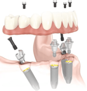 Photo of angled dental implants for information on why it's not too late for implants in Lowell, MA