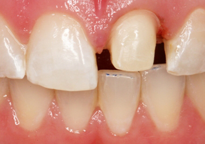 Photo of prepared tooth that was shaved for a dental crown