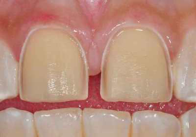 Photo of a tooth that was conservatively prepared for a porcelain veneer