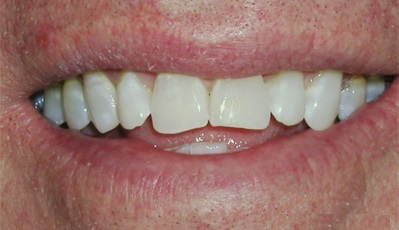 Before enameloplasty, or tooth reshaping, upper teeth