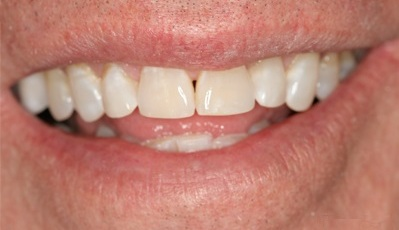 After enameloplasty, or tooth contouring