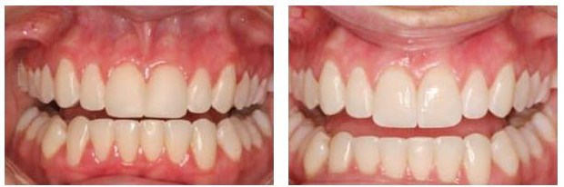 Before-and-after porcelain veneers photos from Massachusetts accredited cosmetic dentist Michael Szarek, DMD