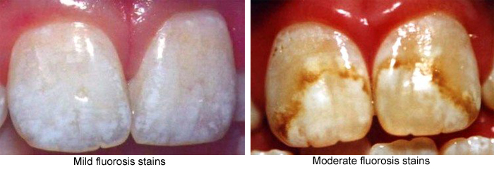 Mild and moderate fluorosis stains photos