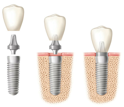 Dental implant diagram of component, implant fixture in bone, and crown placement