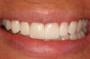 Closeup photo of porcelain veneers created by Dr. Szarek and Mike Bellerino.